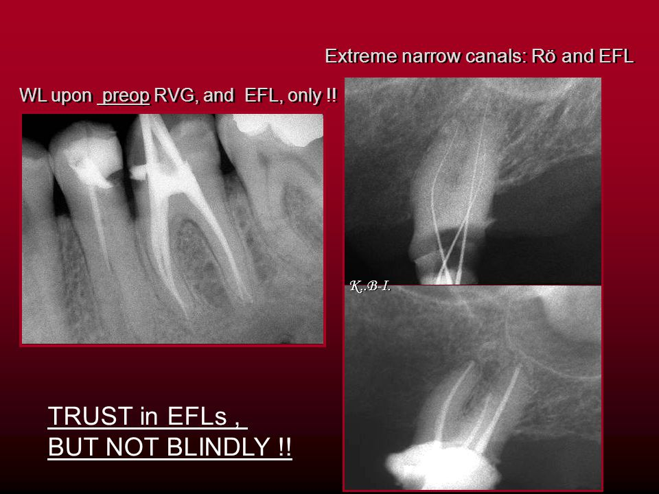 TRUST in EFLs , BUT NOT BLINDLY !! Extreme narrow canals: Rö and EFL