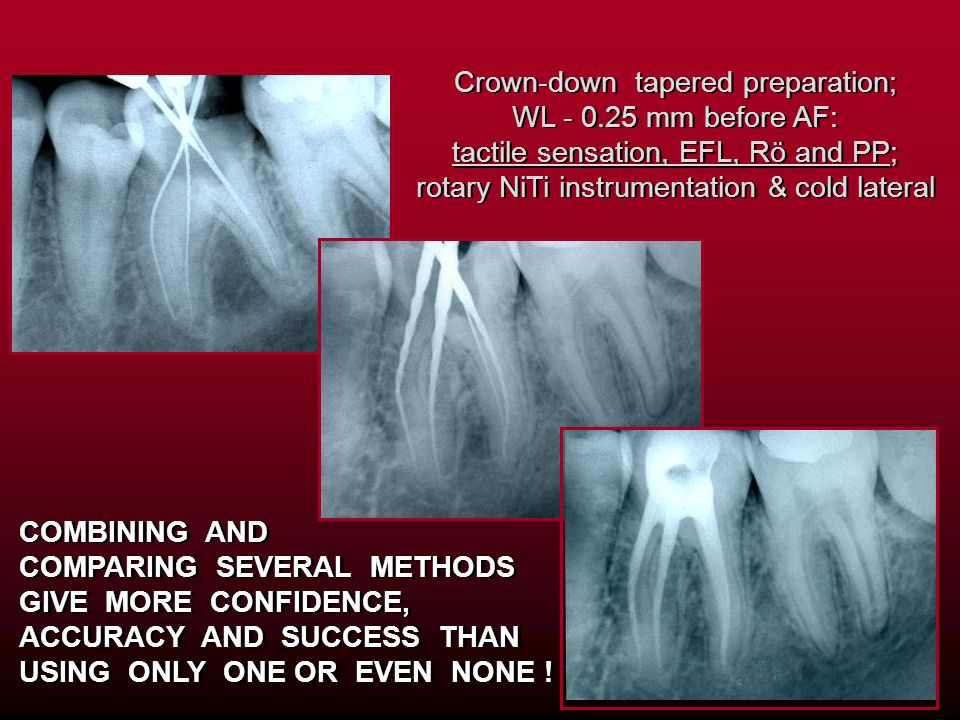 Crown-down tapered preparation; WL - 0.25 mm before AF: