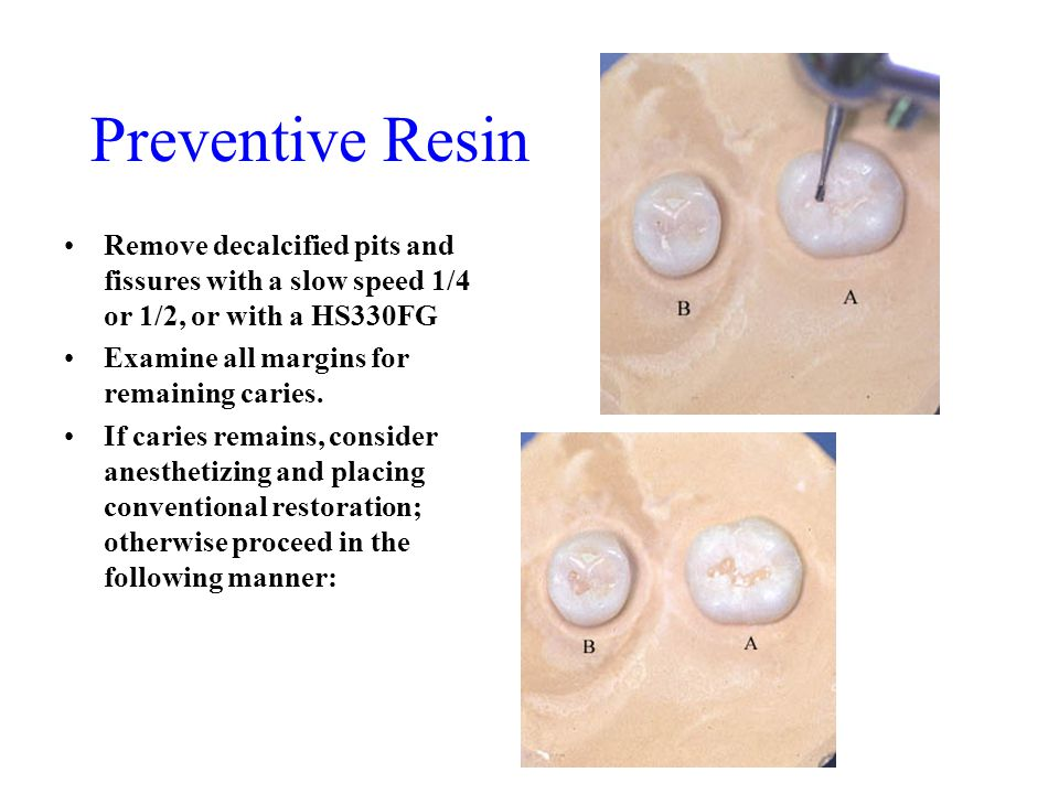 Preventive Resin Remove decalcified pits and fissures with a slow speed 1/4 or 1/2, or with a HS330FG.