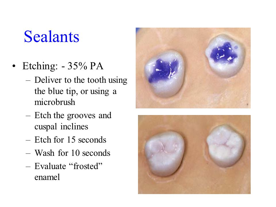 Sealants Etching: - 35% PA