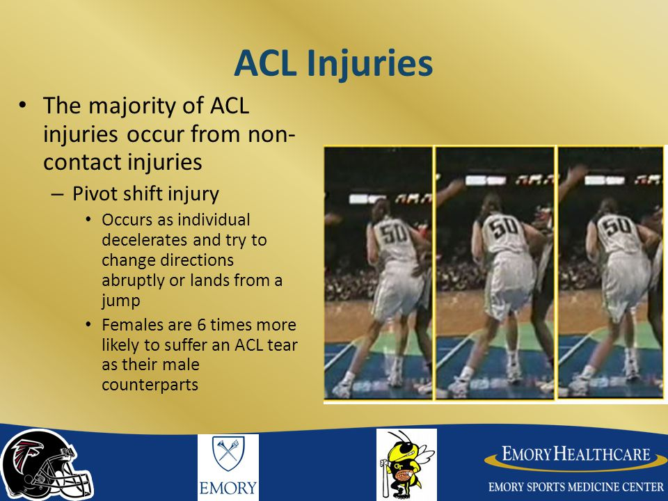 ACL Injuries The majority of ACL injuries occur from non-contact injuries. Pivot shift injury.