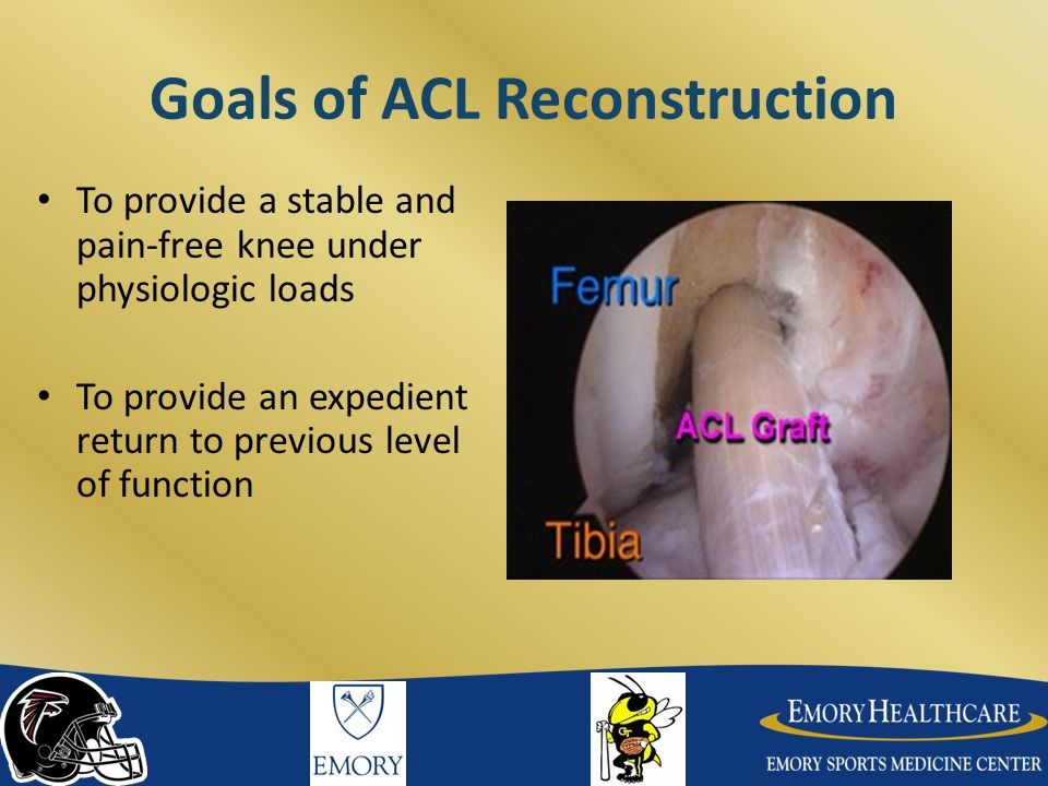 Goals of ACL Reconstruction