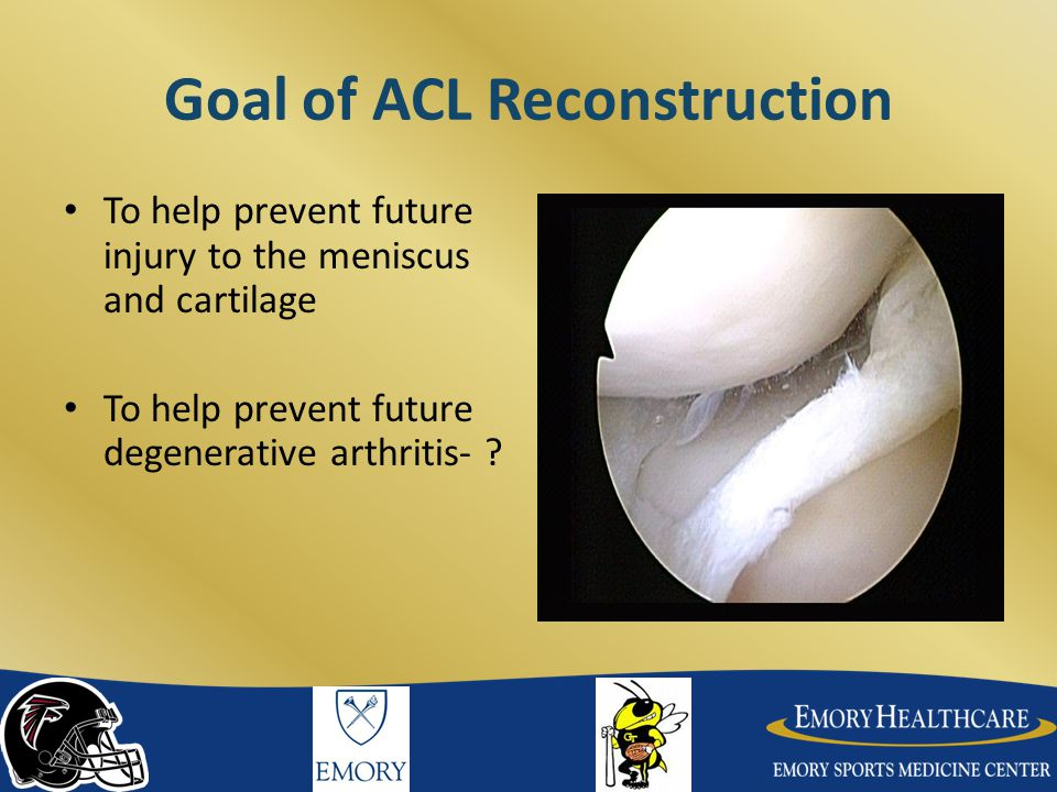Goal of ACL Reconstruction