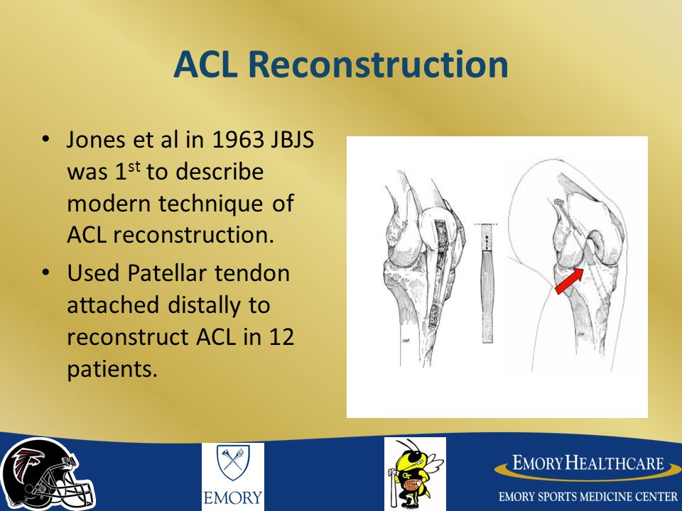 ACL Reconstruction Jones et al in 1963 JBJS was 1st to describe modern technique of ACL reconstruction.