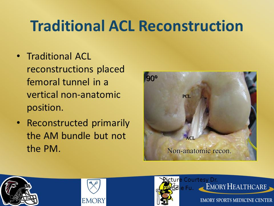 Traditional ACL Reconstruction