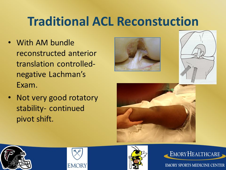 Traditional ACL Reconstuction