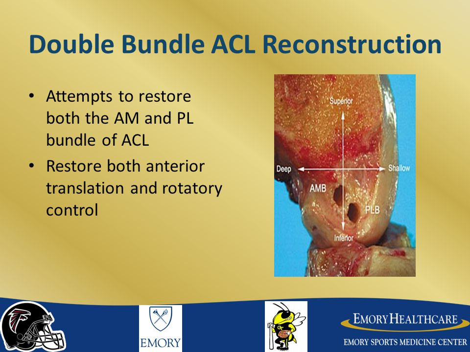 Double Bundle ACL Reconstruction