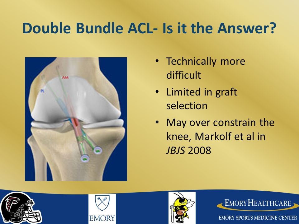 Double Bundle ACL- Is it the Answer