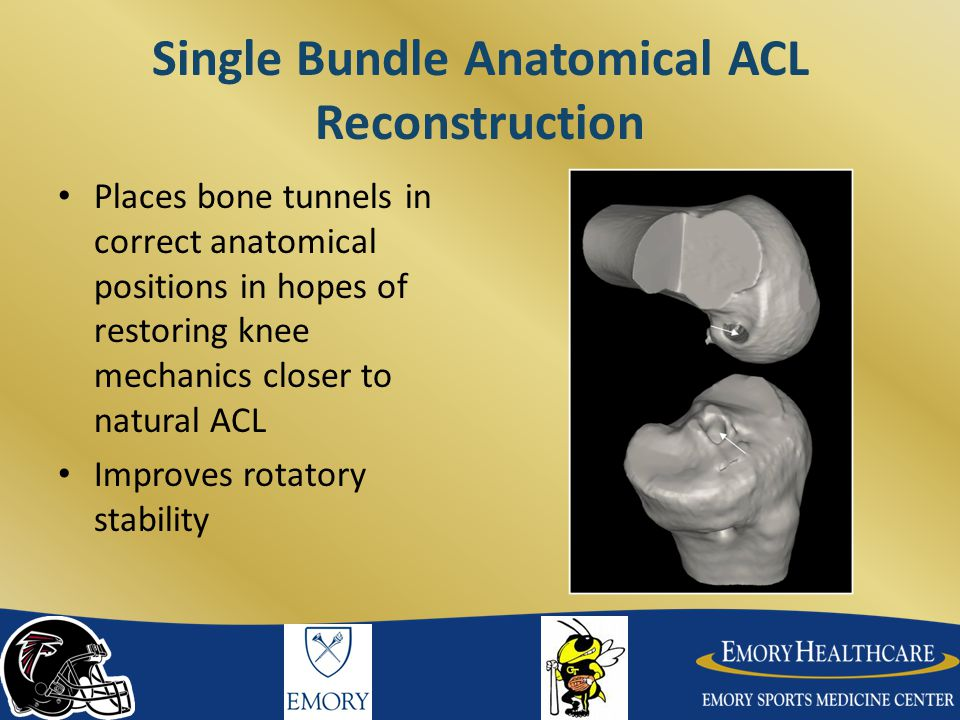 Single Bundle Anatomical ACL Reconstruction