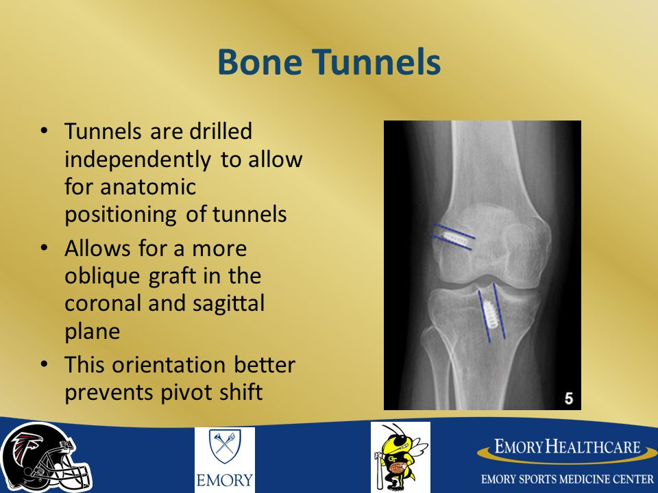 Bone Tunnels Tunnels are drilled independently to allow for anatomic positioning of tunnels.