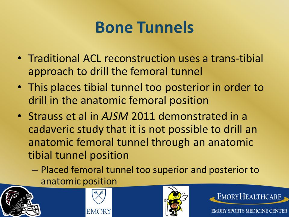 Bone Tunnels Traditional ACL reconstruction uses a trans-tibial approach to drill the femoral tunnel.