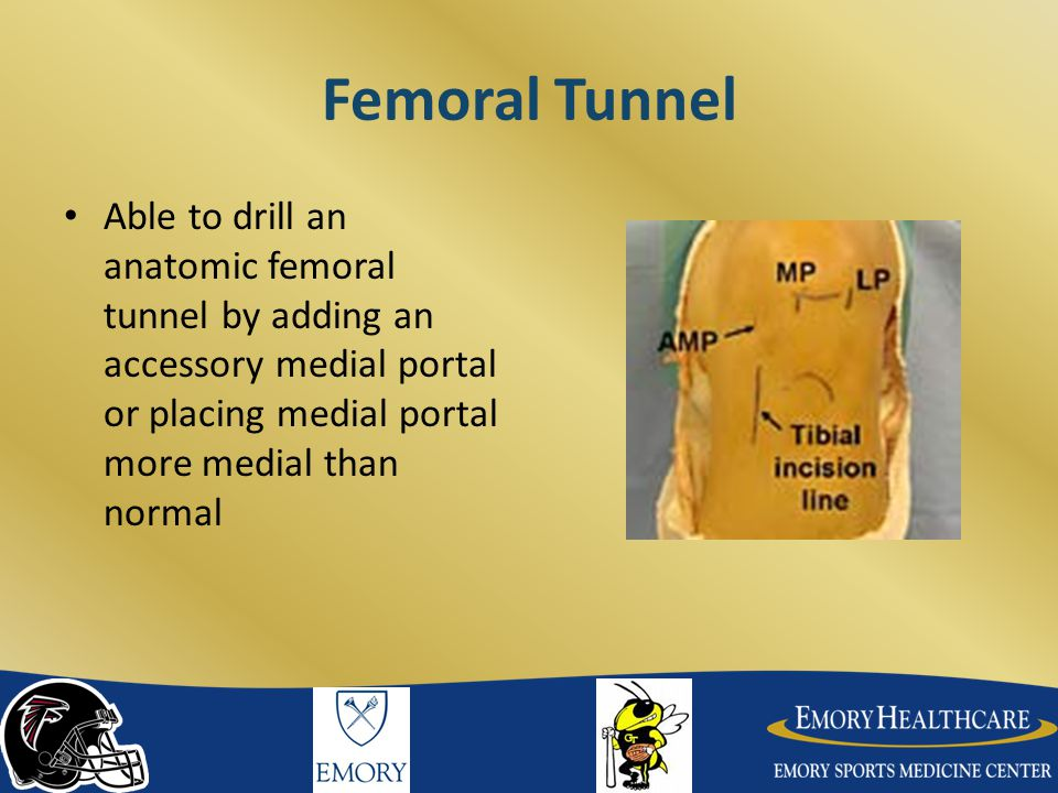 Femoral Tunnel Able to drill an anatomic femoral tunnel by adding an accessory medial portal or placing medial portal more medial than normal.