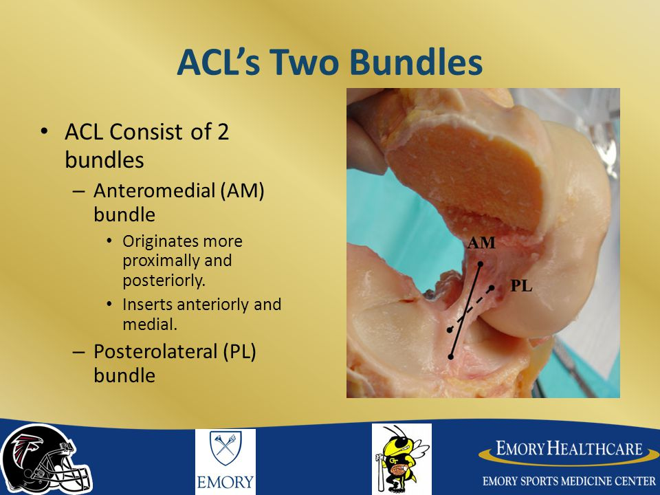 ACL's Two Bundles ACL Consist of 2 bundles Anteromedial (AM) bundle