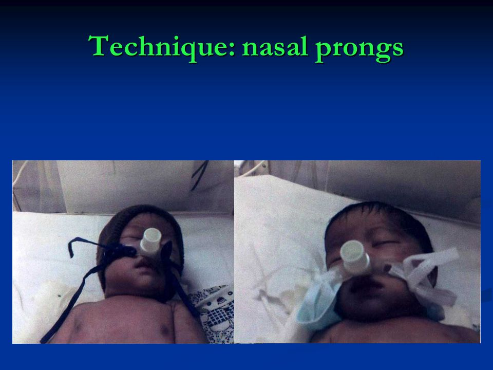 Technique: nasal prongs