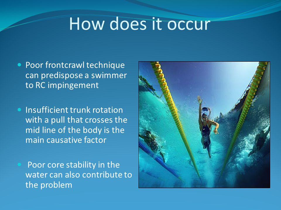 How does it occur Poor frontcrawl technique can predispose a swimmer to RC impingement.