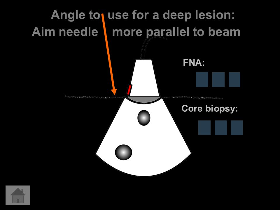 Angle to use for a deep lesion: Aim needle more parallel to beam