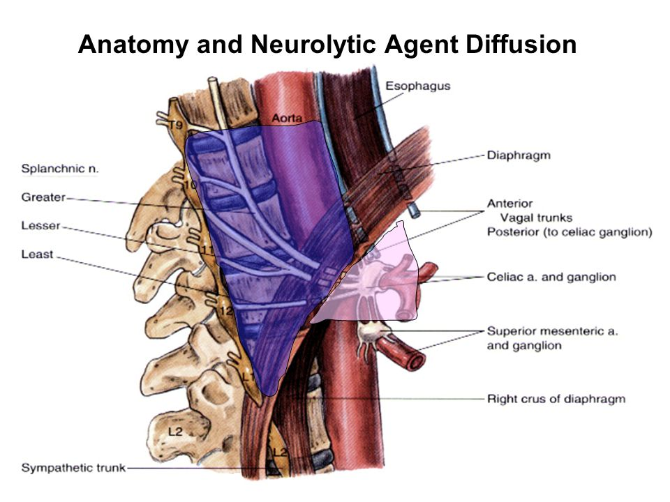 Anatomy and Neurolytic Agent Diffusion