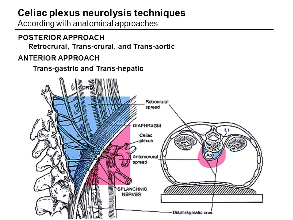 Celiac plexus neurolysis techniques According with anatomical approaches