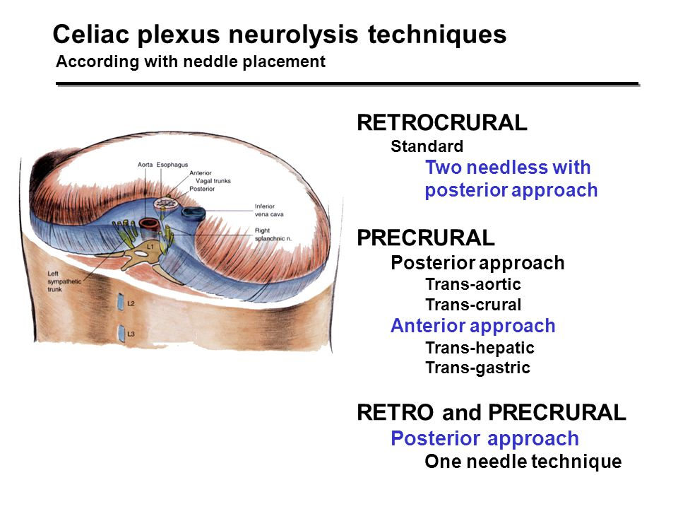 Celiac plexus neurolysis techniques
