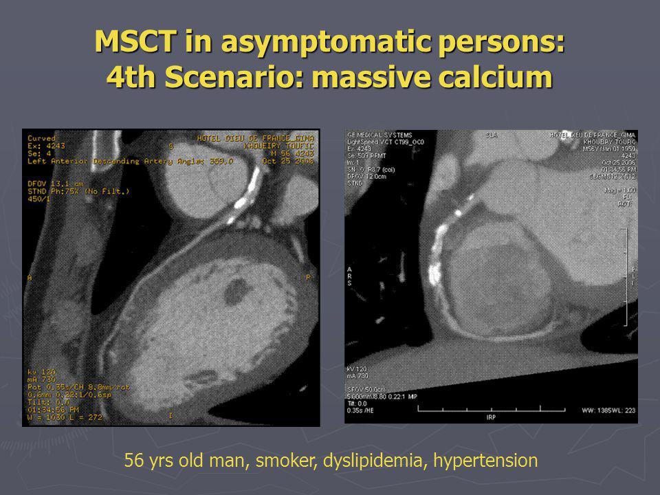 MSCT in asymptomatic persons: 4th Scenario: massive calcium
