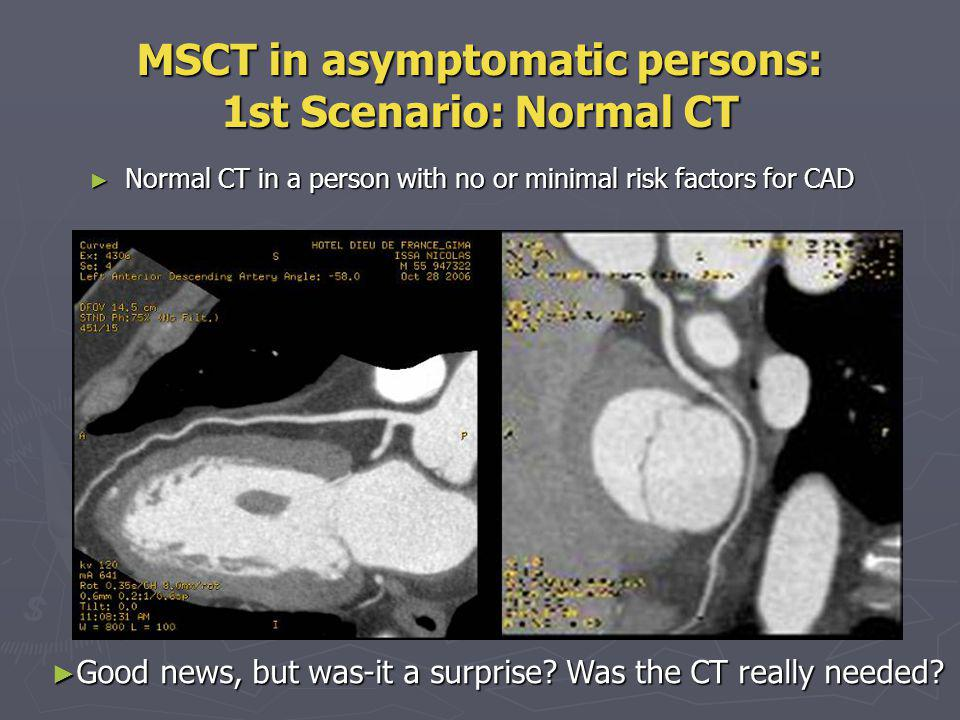 MSCT in asymptomatic persons: 1st Scenario: Normal CT