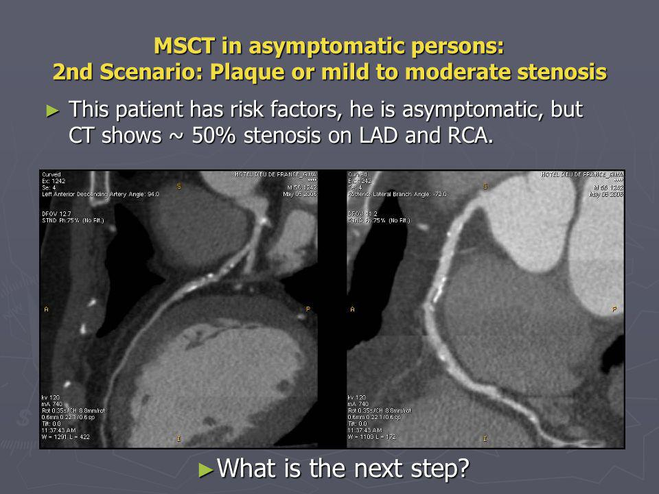 MSCT in asymptomatic persons: 2nd Scenario: Plaque or mild to moderate stenosis