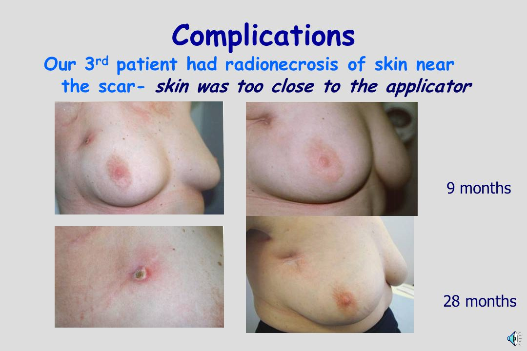 Complications Our 3rd patient had radionecrosis of skin near the scar- skin was too close to the applicator.