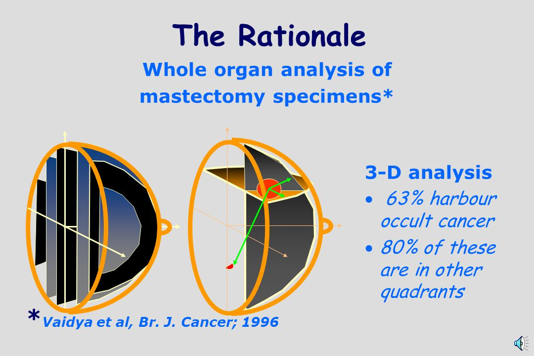 The Rationale *Vaidya et al, Br. J. Cancer; 1996