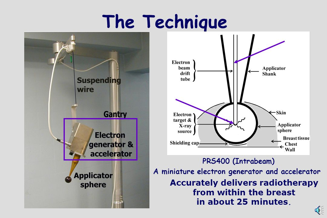The Technique PRS400 (Intrabeam)