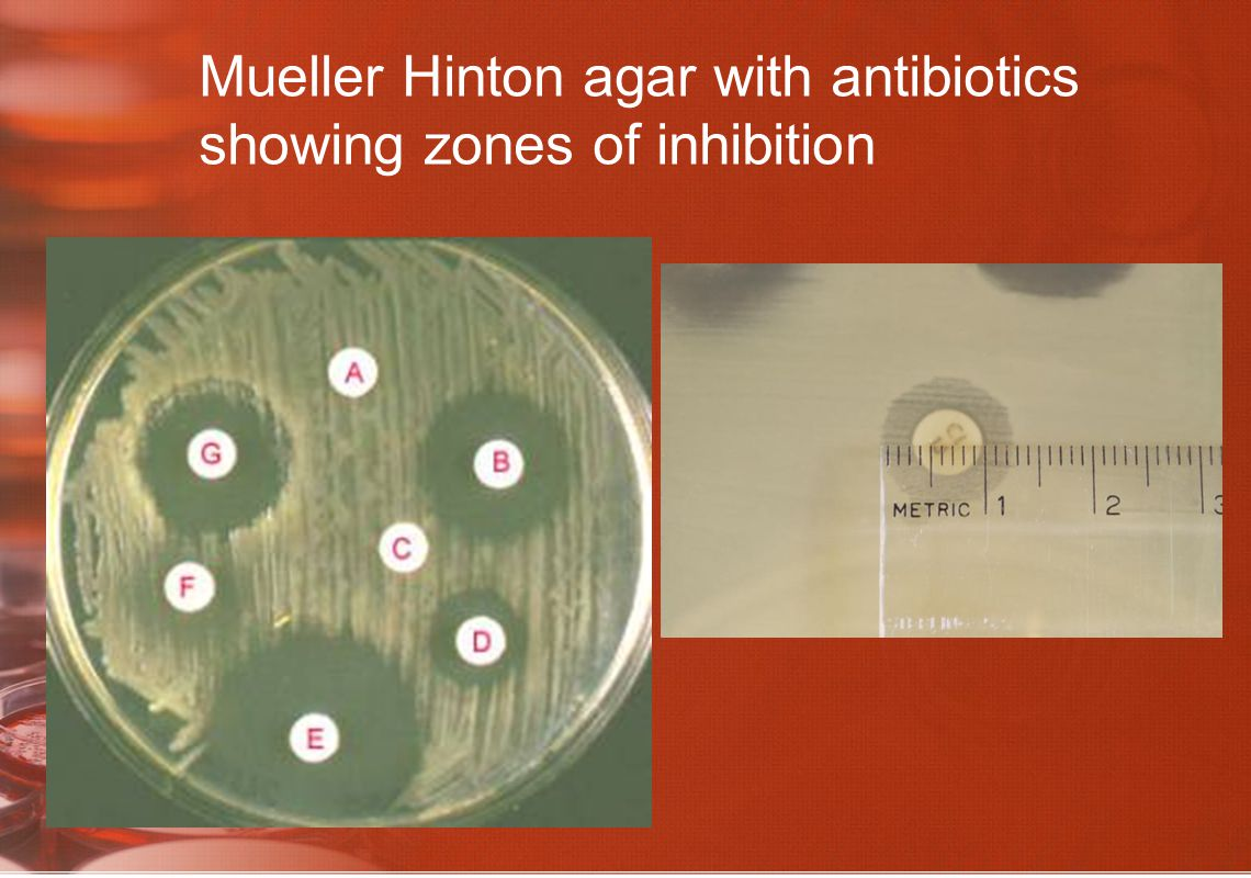Mueller Hinton agar with antibiotics showing zones of inhibition