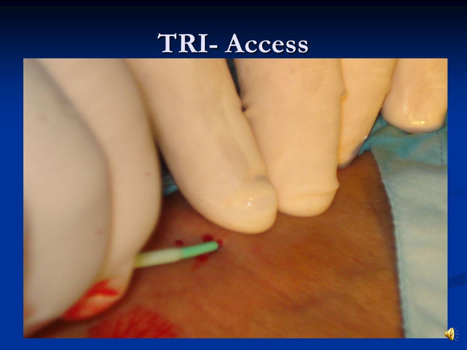 TRI- Access