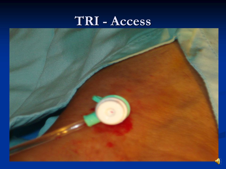 TRI - Access