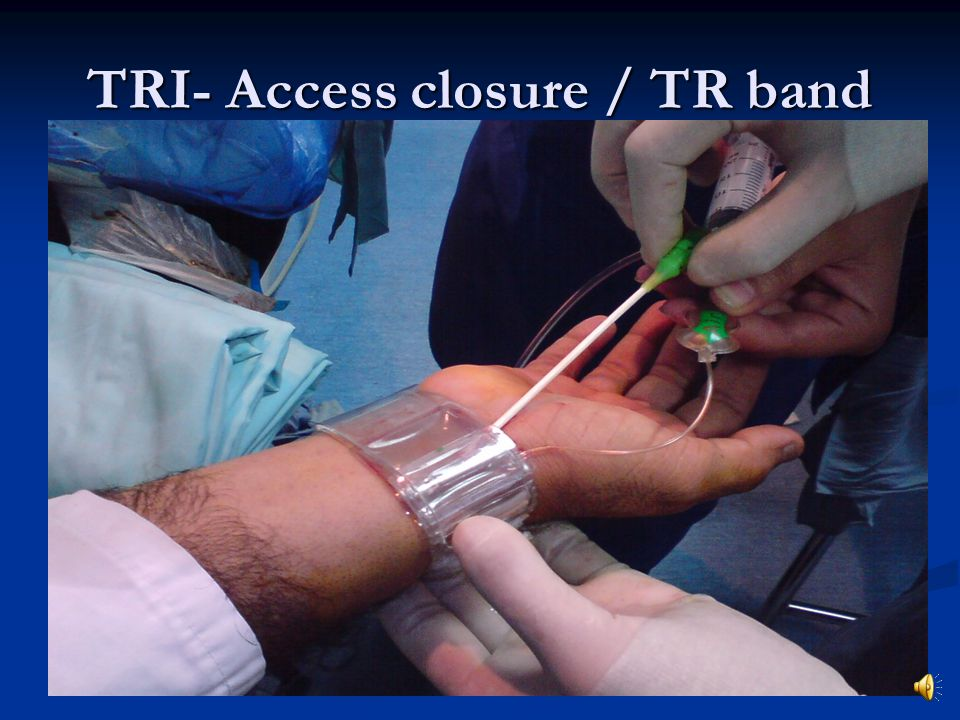TRI- Access closure / TR band