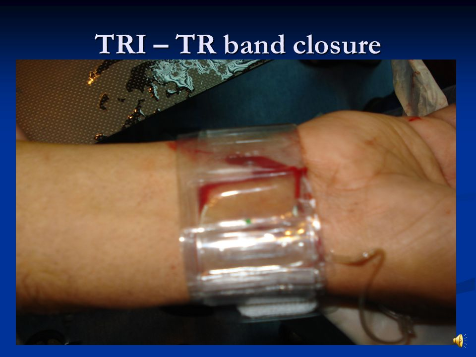 TRI – TR band closure
