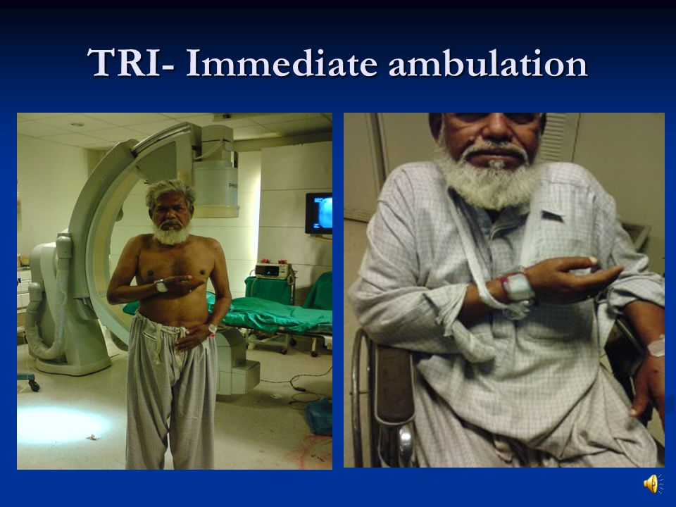 TRI- Immediate ambulation
