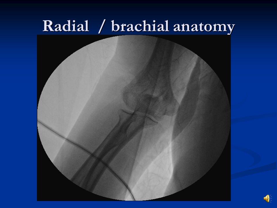 Radial / brachial anatomy