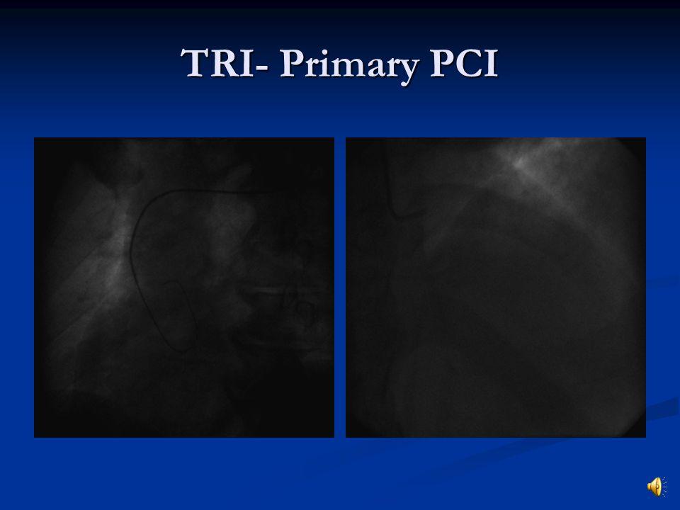 TRI- Primary PCI