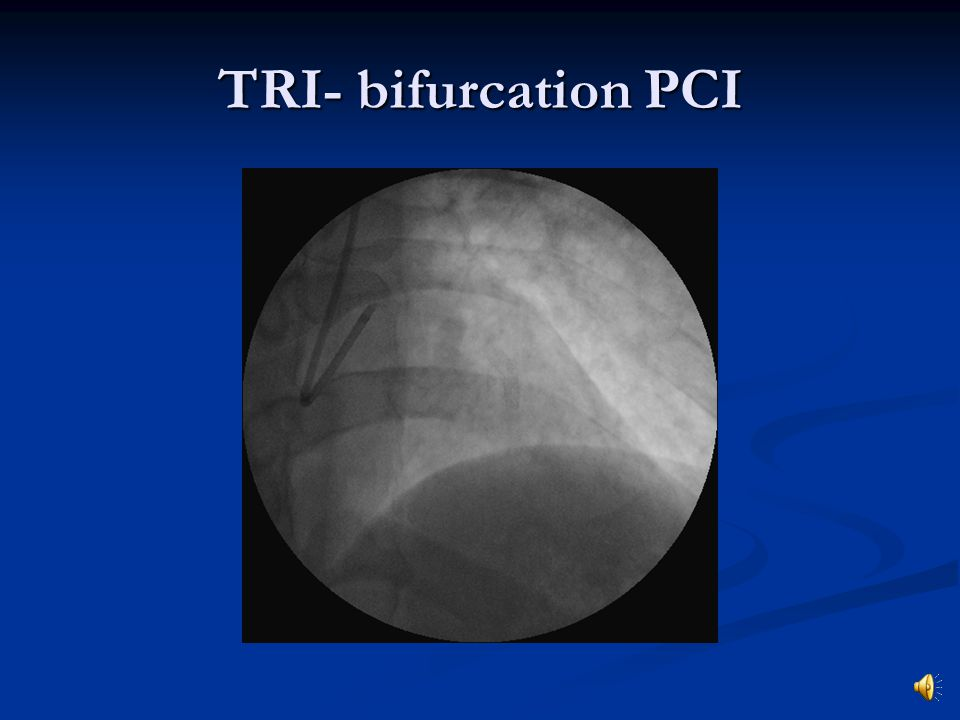 TRI- bifurcation PCI