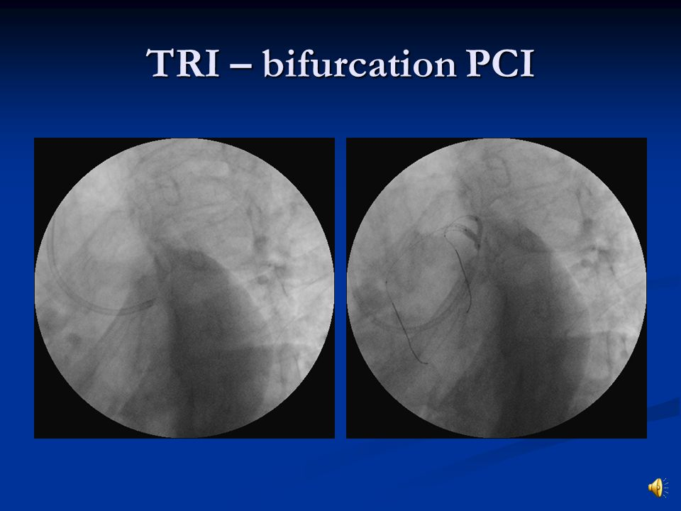 TRI – bifurcation PCI