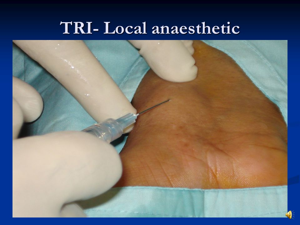 TRI- Local anaesthetic