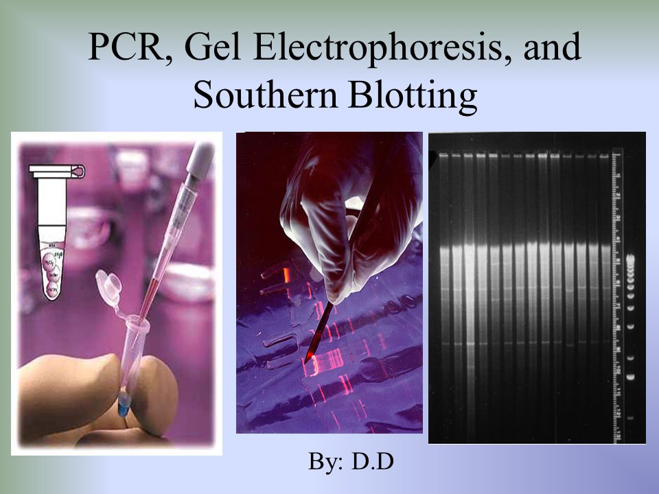 PCR, Gel Electrophoresis, and Southern Blotting
