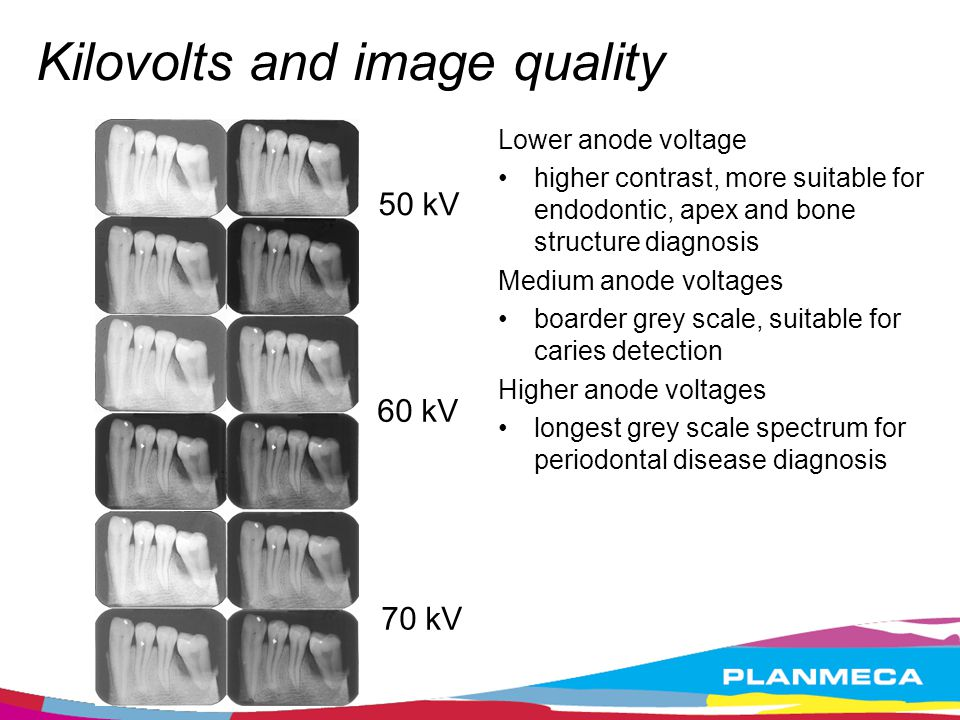 Kilovolts and image quality