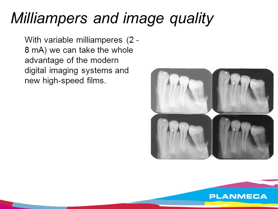Milliampers and image quality