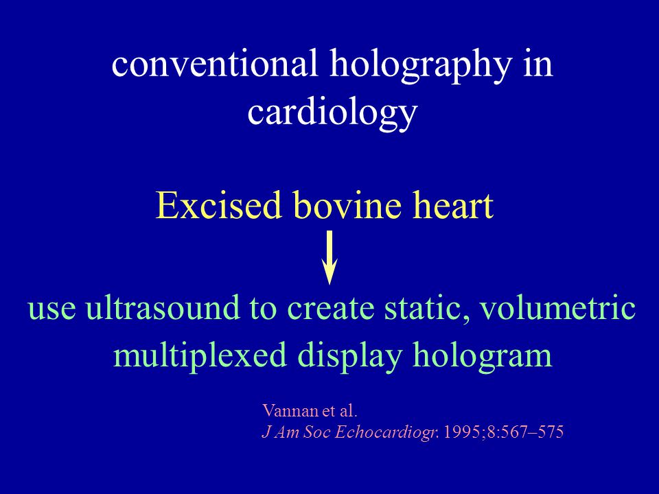 conventional holography in cardiology