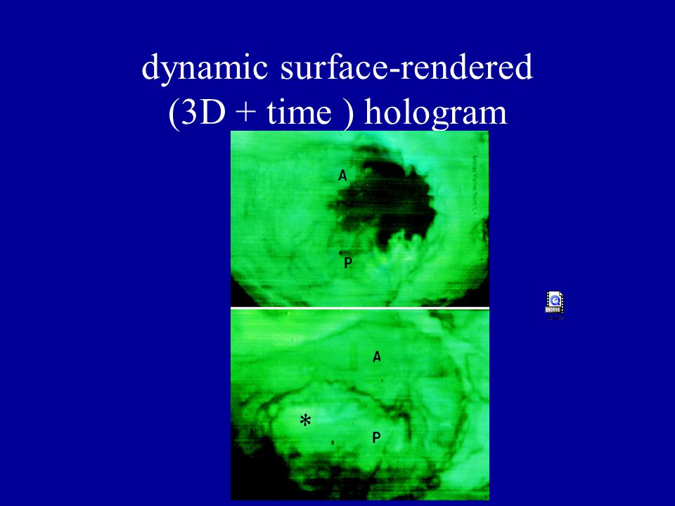 dynamic surface-rendered (3D + time ) hologram