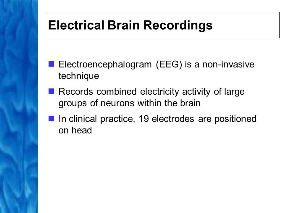 Electrical Brain Recordings