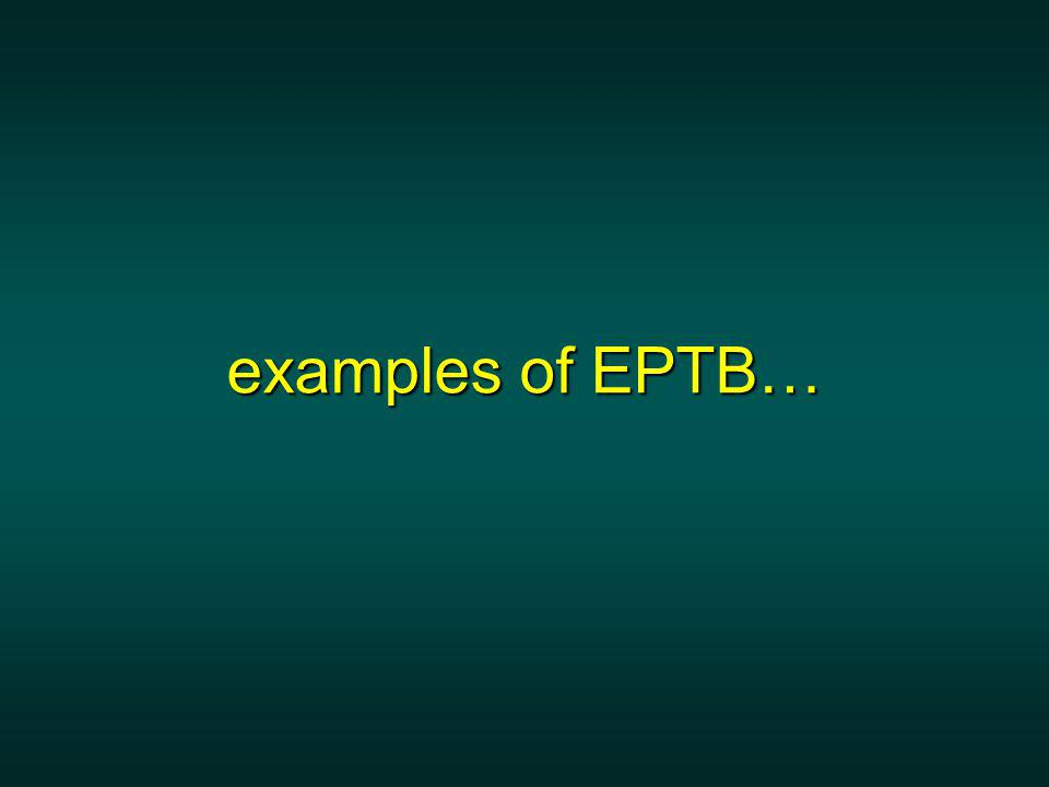 examples of EPTB…
