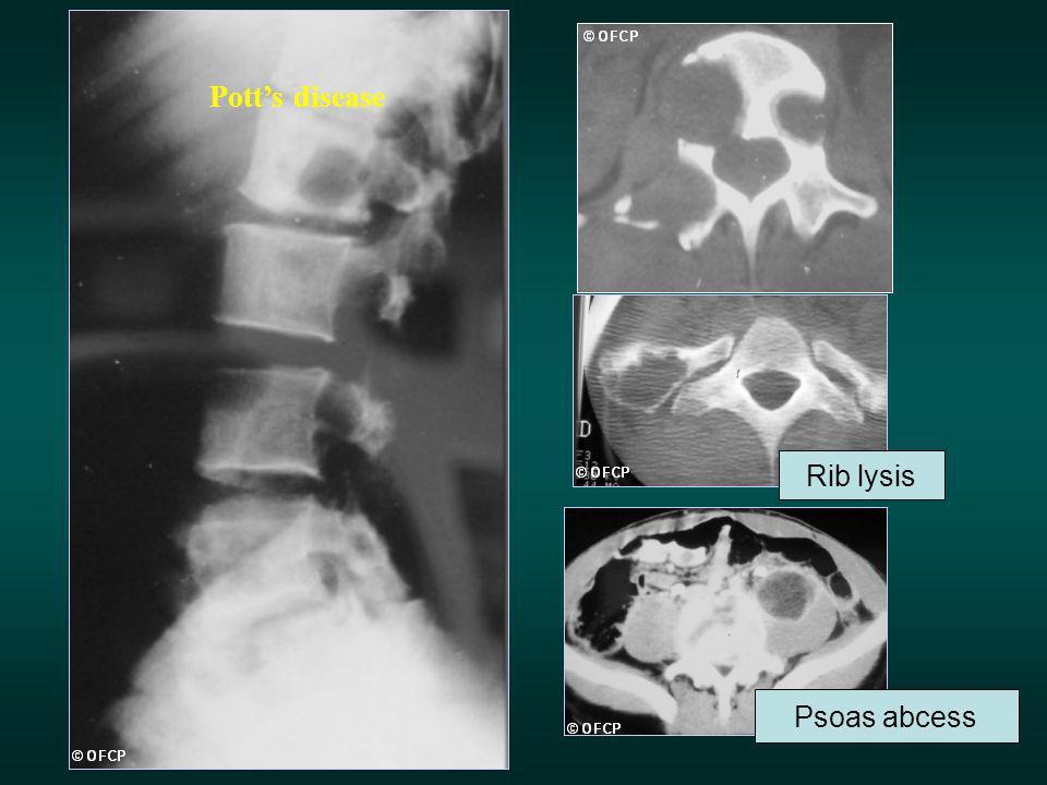 Pott's disease Rib lysis Psoas abcess