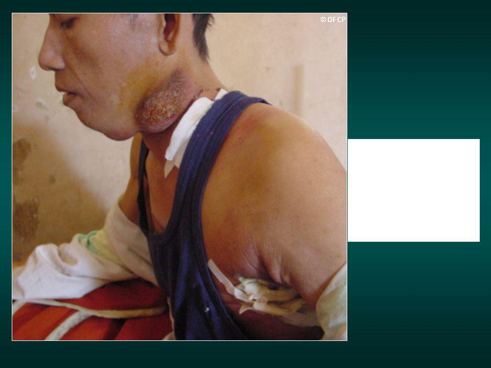Adénites TB cervicales et axillaires G chez un patient cambodgien SIDA