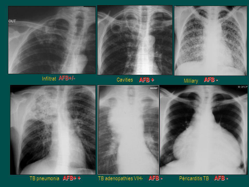 AFB+/- AFB+ + AFB + AFB - Infiltrat Cavities Milliary TB pneumonia